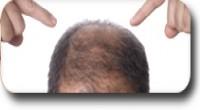 Трансплантация на коса - 2500 €